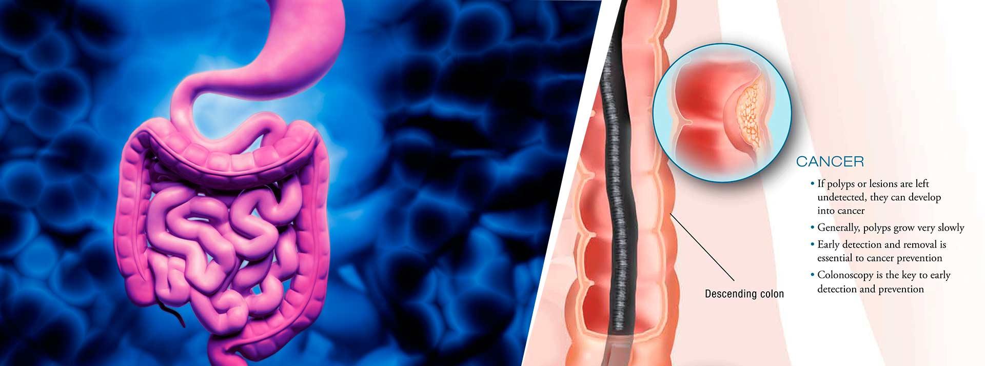 Colorectal Surgery & Care